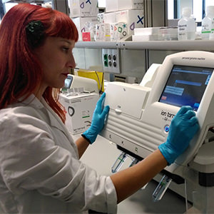 bioarray diagnostica de forma precoz un 50% de casos de cáncer de mama