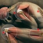 Salud en el trabajo: desórdenes musculoesqueléticos