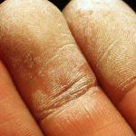 Peróxido de hidrógeno: peligros, efectos en salud y controles