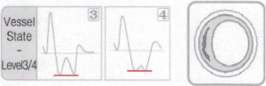 DPA Type 3 Type 4 waveforms