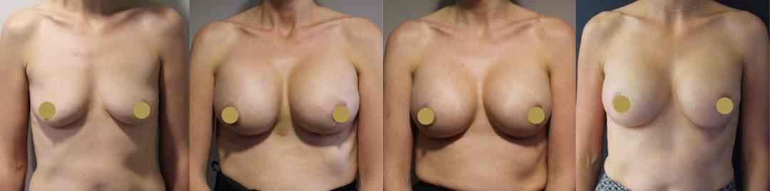 Breast enlargement Cheshire