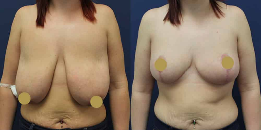 Breast Lift Cheshire