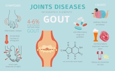 Joints diseases Gout symptoms treatment RGLZ LAW Med