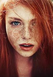 freckles and red hair