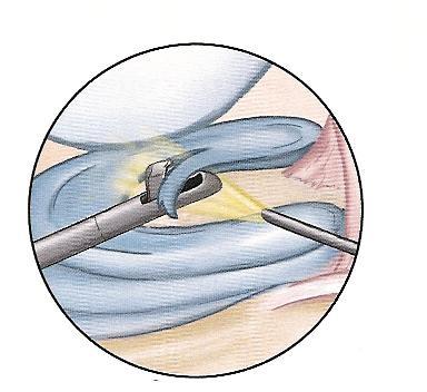detail%20meniscus%20repair%20colour