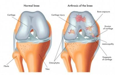 """Quegli strani rumorini emessi dall articolazione durante il movimento  potrebbero essere la """"spia"""" dell artrosi in agguato 88ccc5f0f9de"""