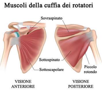 La tendinite del sovraspinoso è una patologia che coinvolge l articolazione  della spalla e91088710a0b