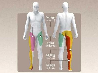 esercizi per il dolore allinguine interno