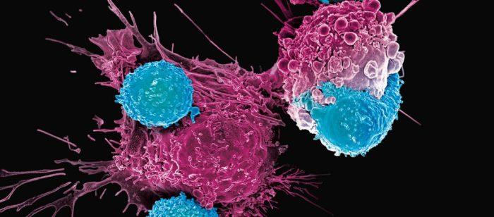 La Comunitat Valenciana aplica la teràpia CAR-T a 44 pacients amb limfoma o leucèmia