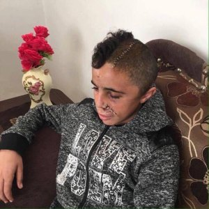 mohammed al tamimi wounded