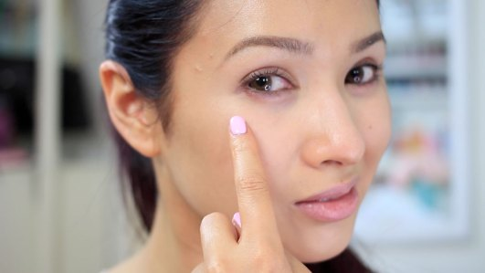 Image result for puffy eyes