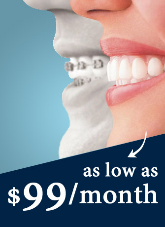 Invisalign at 99$/month