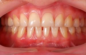 Gum Disease Solution