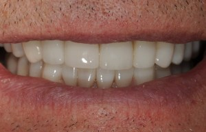Teeth Discoloration Solution