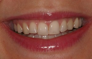 Tooth Discoloration Problem