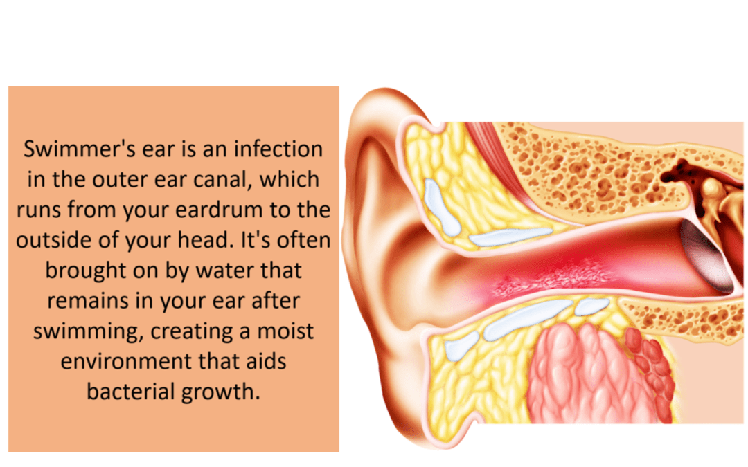 Swimmers ear, infection, bacteria