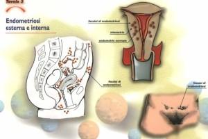 Endometriosi e fertilità : cosa fare