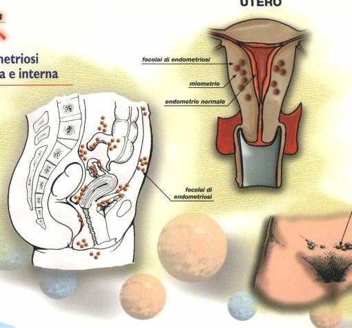endometriosi e fertilità