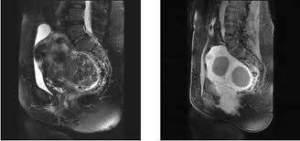 fibromi uterini embolizzazione, rmn fibromi uterini