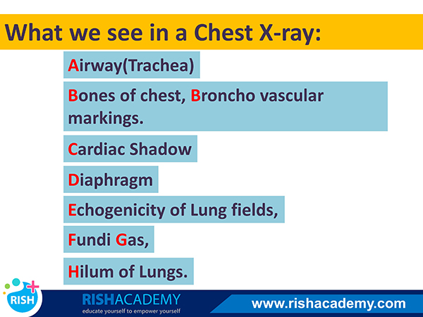 Medicine Flashcards Mnemonics - rishacademy.com (14)