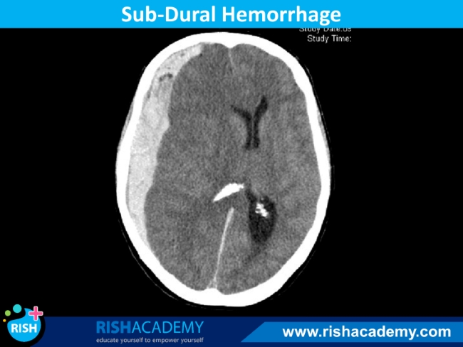 intracranial hemorrhage (3)