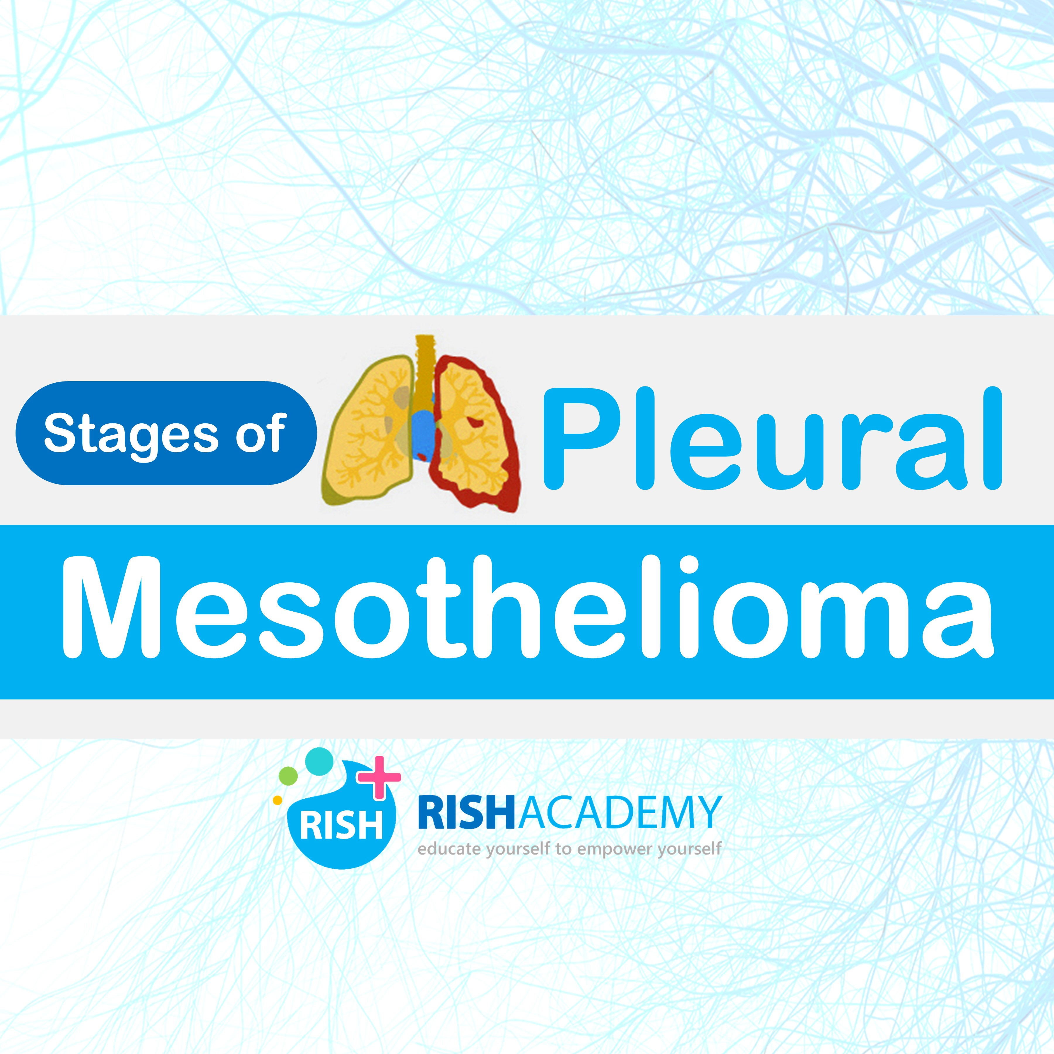 pleural mesothelioma stages