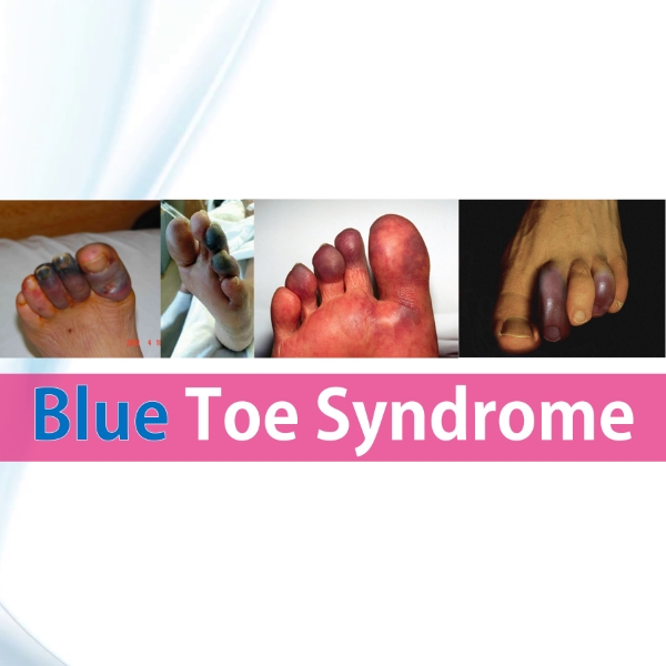 Blue Toe Syndrome featured rish academy