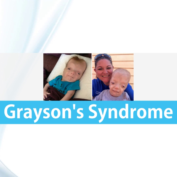 Graysons Syndrome Grayson Wilbrandt Corneal Dystrophy featured