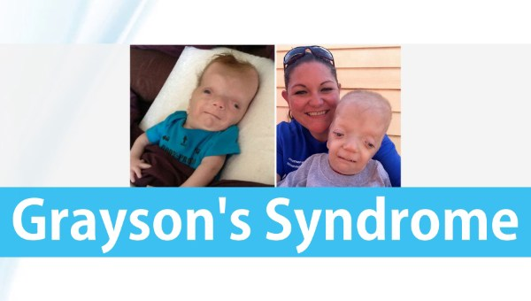 Graysons Syndrome Grayson Wilbrandt Corneal Dystrophy Rish Academy