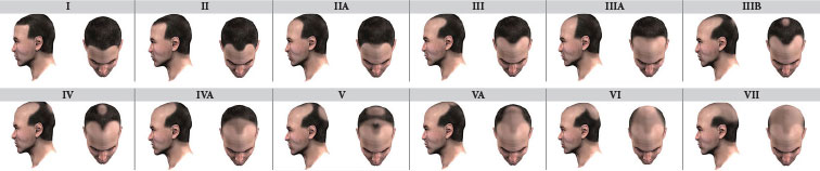 The Norwood-Hamilton scale of the progression of Male Pattern Baldness