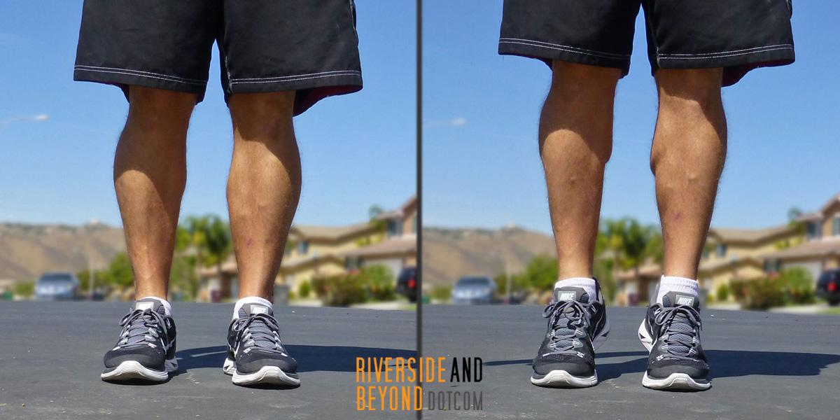 Achilles tendon rupture calf muscles front view.