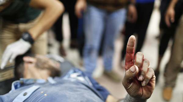 A Palestinian man, who medics said was wounded by Israeli shelling, raises his finger as he is brought to a hospital in Gaza City.