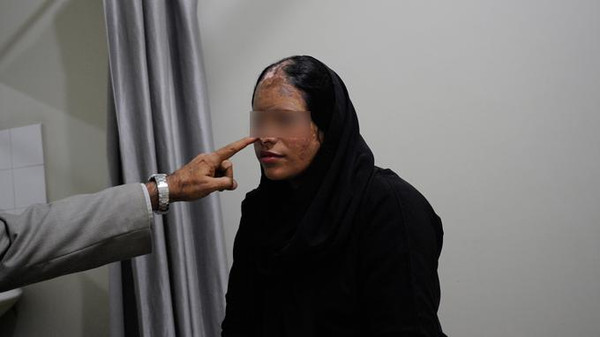 Tahira, 28, an acid attack survivor, is photographed during an appointment for reconstructive surgery at a hospital in Karachi December 14, 2011.