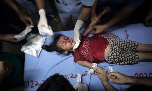 Palestinian medics treat a wounded girl, at the Kuwaiti hospital at Rafah refugee camp, in southern Gaza Strip, on Monday. Israel declared a 7-hour truce on Monday to facilitate the entry of humanitarian aid and allow some of the hundreds of thousands of Palestinians displaced by an almost four-week-old war to go home.