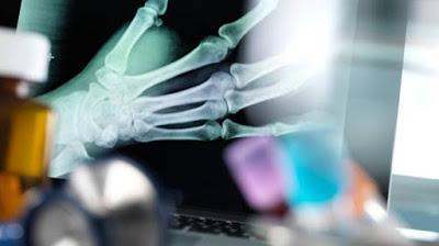 tulang retak cepat pulih