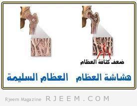 Photo of العظام و صحتها