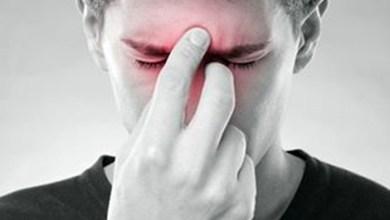 Photo of علاج التهاب الجيوب الأنفية بشكل طبيعي