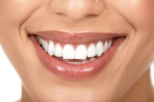 طريقة رائعة ومجربة  لتبييض الأسنان بدون تكلفة في 4 دقائق