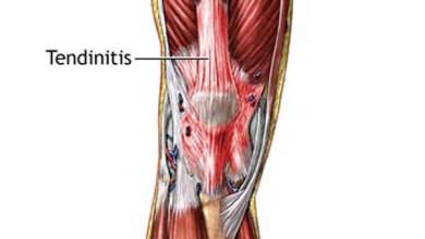 Photo of كيف تخفف من آلام التهاب الأوتار؟