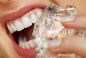 ما هي أسباب حساسية الاسنان؟