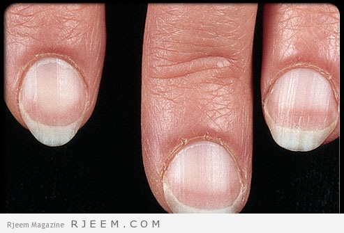 maladie des ongles