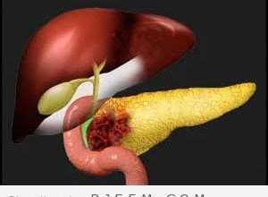 Photo of سرطان البنكرياس