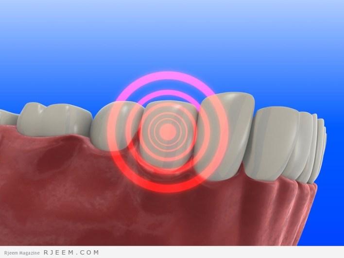تخفيف وجع الاسنان - علاجات منزلية لوجع الاسنان