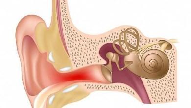 Photo of التهاب الاذن – اسباب وعلاج التهاب الاذن