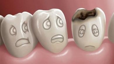 Photo of تسوس الاسنان – علاج تسوس الاسنان والوقاية منه