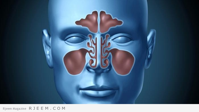 اسباب وعلاج التهاب الجيوب الانفية - علاجات منزلية لالتهاب الجيوب الانفية