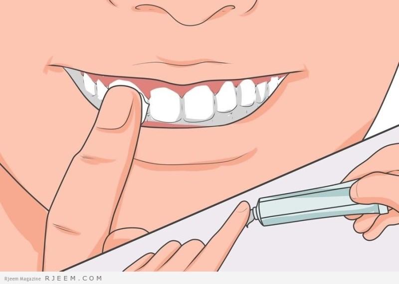 نتيجة بحث الصور عن علاج وجع الاسنان بـ ٨ وصفات تُسكن الألم فوراً