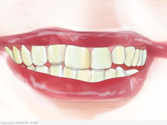 5 اعراض لتأكل مينا الاسنان