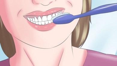 Photo of 5 اعراض لتأكل مينا الاسنان