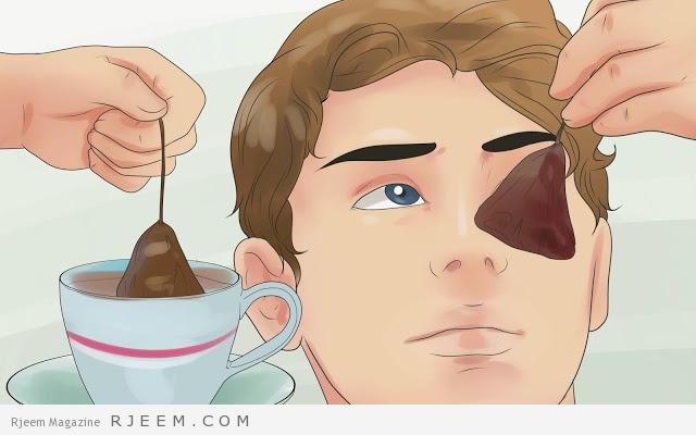 15 وصفة طبيعية لعلاج الهالات السوداء